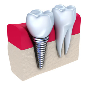 dental implants whittier ca