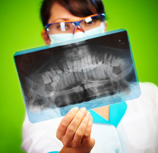 Dental XRAY for your Dentist in WHITTER CA
