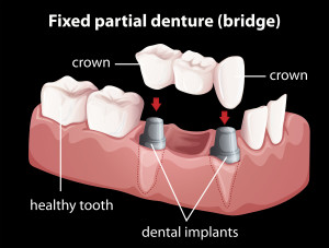 Dental Bridge using Dental Implants
