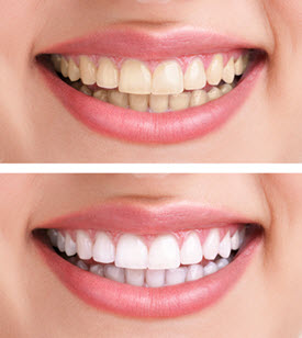 Whittier Dentist Teeth Whitening