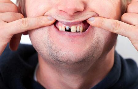 Permanent titanium dental implants