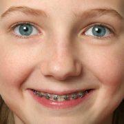 orthodontist braces smile