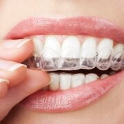 Invisalign Teeth Straightening in Pico Rivera