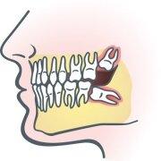 Wisdom Teeth Problems