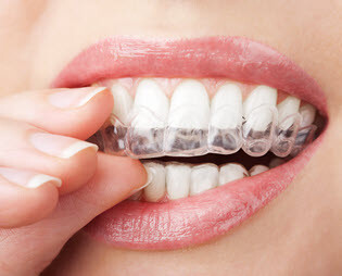 Invisalign Invisable Teeth Braces Whittier