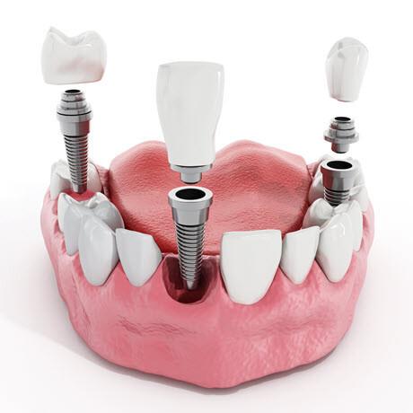 dental implants - Dr Winston - Whittier