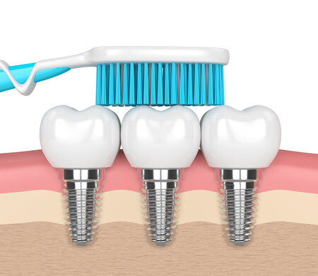 Dental Implants Brushing Teeth