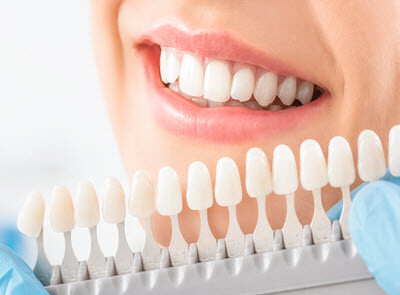 Shades of Color For Dental Implants