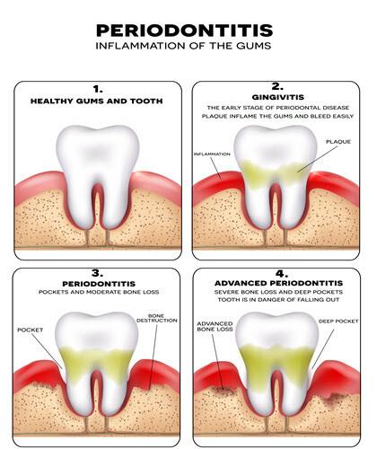 Gums Disease