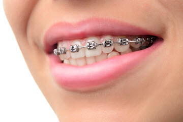 Beautiful Teeth Braces