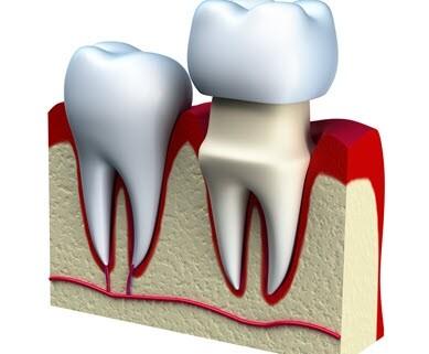 Dental Crown on Tooth
