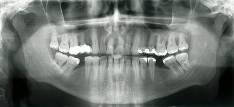 Dental xRay Whittier
