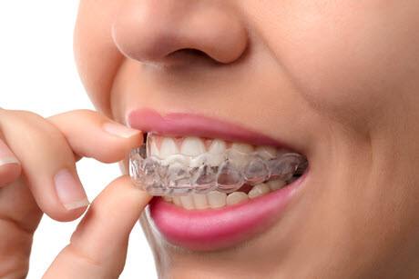 New Invisalign Teeth Straightening