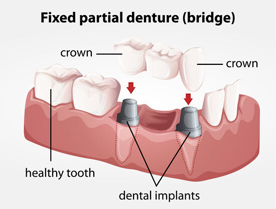 Two Dental Crowns and a Bridge